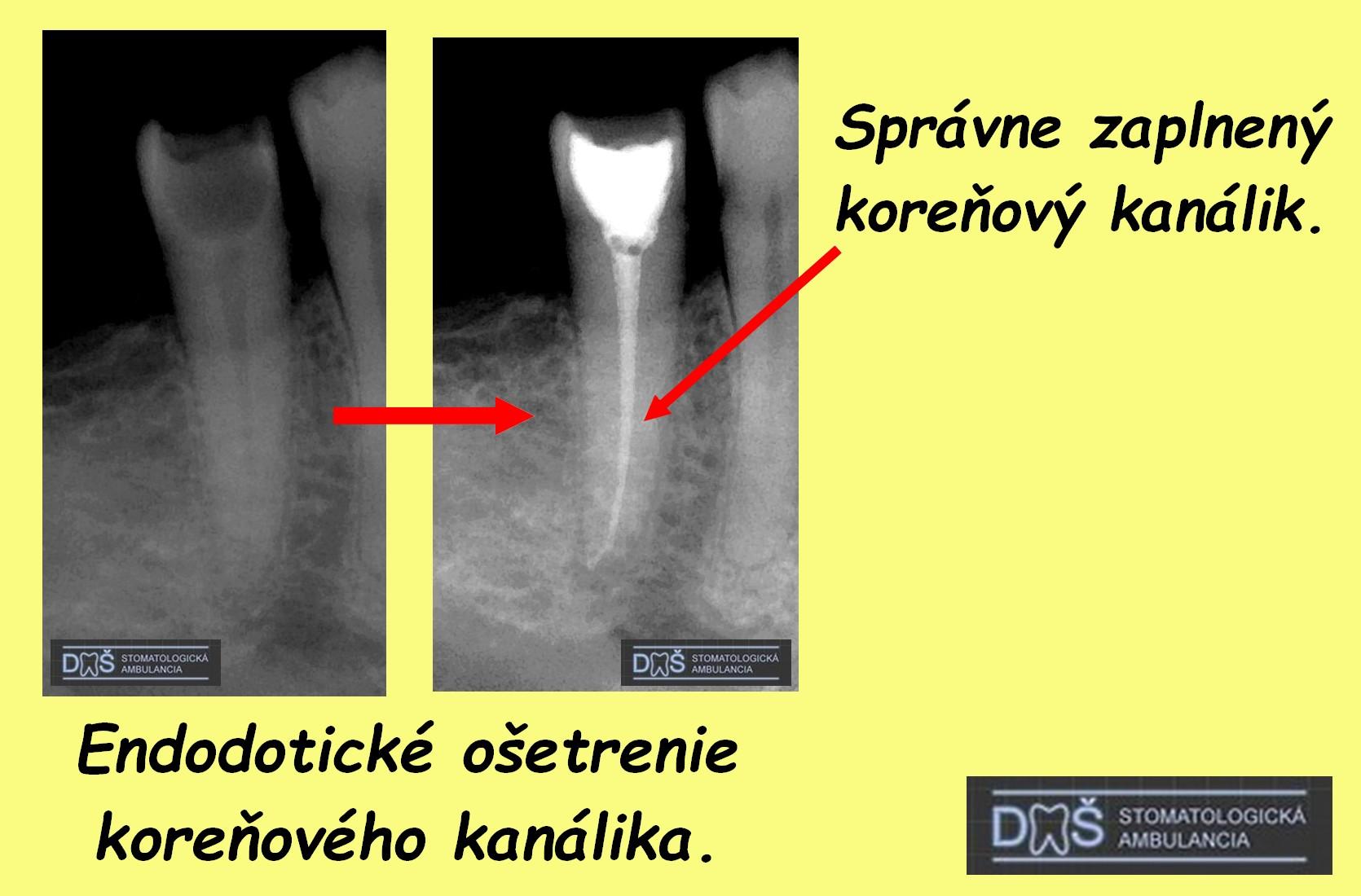 rtg endodoncia