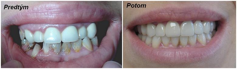 Celková rekonštrukcia zubov